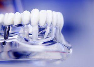 dental-implants-bali-sydney