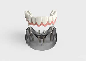 all-on-4-dental-implants-sydney