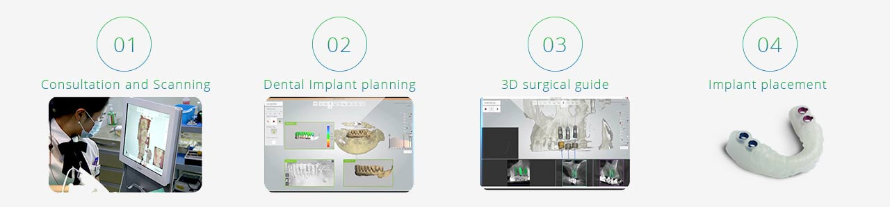 digital dental implant procedure in sydney