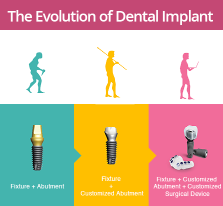 evolution-of-dental-implant